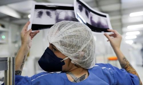 A doutora Luciana Souza compara duas radiografias de tórax diferentes de um paciente enquanto conversa com um colega de um hospital de campanha criado para tratar pacientes que sofrem da doença de coronavírus (COVID-19) em Guarulhos, São Paulo