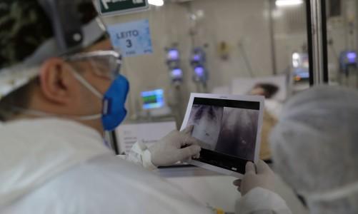 O chefe do médico da UTI, Everton Padilha Gomes, examina uma radiografia de tórax de um paciente em um hospital de campo criado para tratar pacientes que sofrem da doença por coronavírus (COVID-19) em Guarulhos, São Paulo